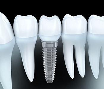 Dental Implant Providers Willoughby Hills