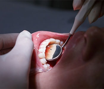 Periodontal Care Willoughby Hills