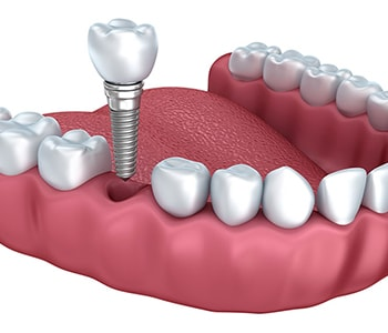 Solution For Missing Teeth Willoughby Hills