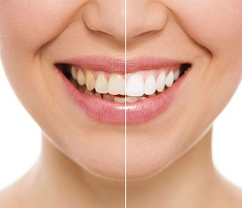 Teeth Whitening Service Willoughby Hills