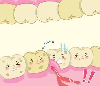 Wickliffe Gum Treatments