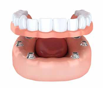 Implant-supported dentures illustration