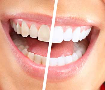 woman's mile before and after teeth whitening