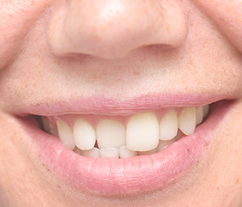 Close-up of patient's smile with crooked teeth