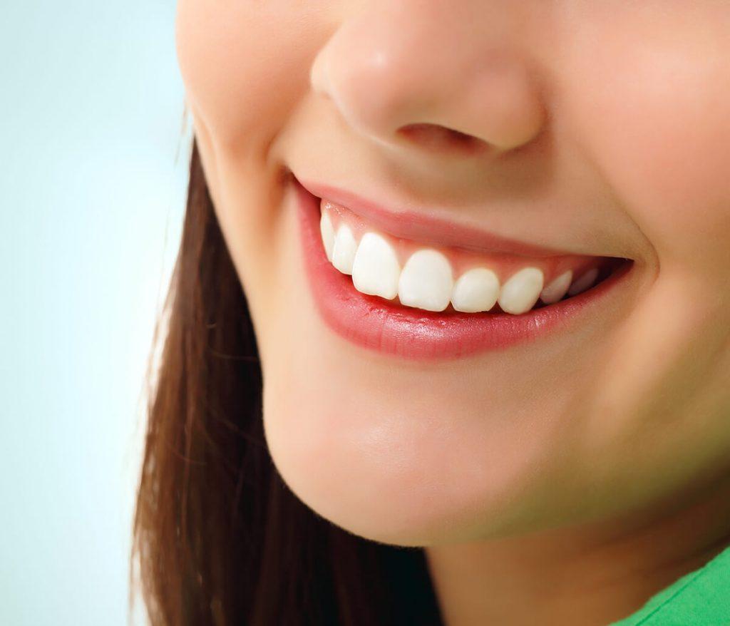 Getting Dental Veneers in Willoughby Hills Oh Area