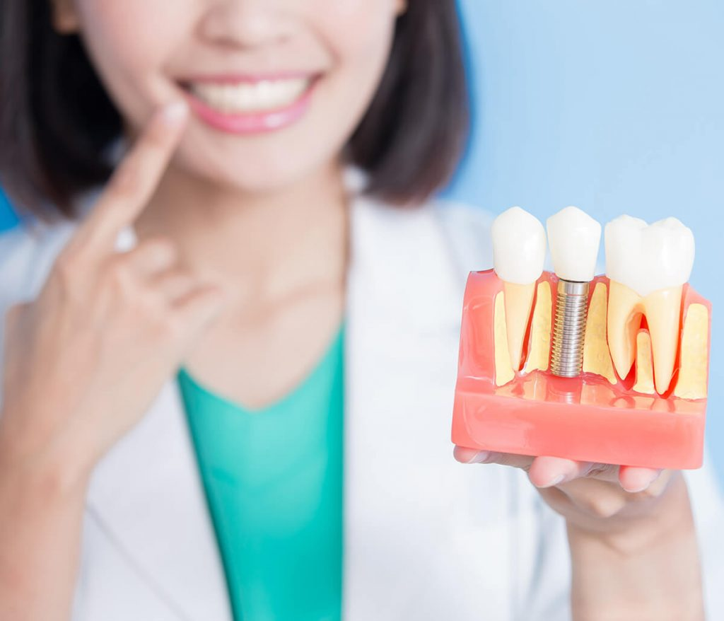 Woman comparing dental implants to her teeth