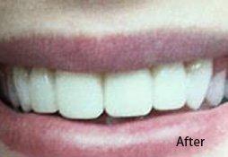 Patient's smile after treatment